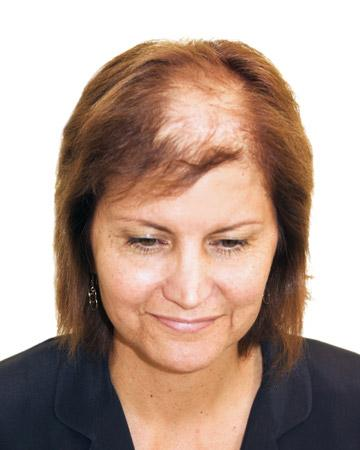 solutions before after womens gallery womens hair loss solutions 01 womens hair loss solutions before and after 02
